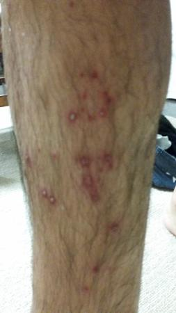 Su Bi Beauty Salon & Spa: This is what happened to my husband's leg the day after a  foot massage at Su Bi Spa