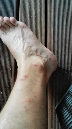 Angaga Island: Moskitos - 2. Tag - Rechter Fuß Außen