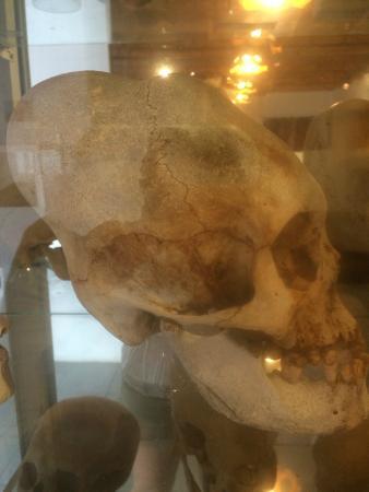 Paracas History Museum -  Juan Navarro Hierro: Fantastic skulls