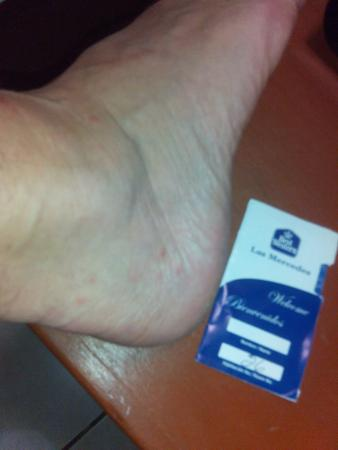 Best Western Las Mercedes: My foot after being eaten alive by the bedbugs in my room