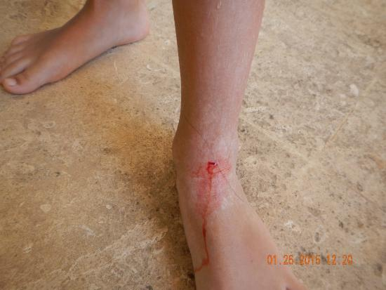 Hotel Laguna Mar: My daughter cut her foot in the pool area.