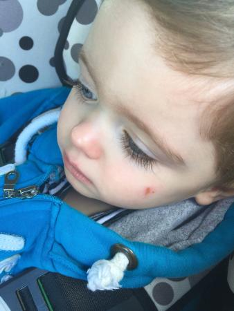 Warrington, UK: My son after been kicked in the head!!!!!