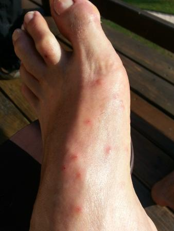 Bed Bug Bites Received All Over Our Hands Arms Legs And Feet In Rooms 19 10 Picture Of Pelican Beach Resort Dangriga Tripadvisor