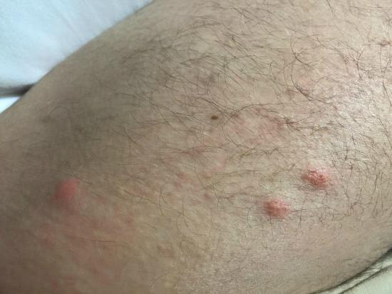 Bed Bugs Bites From My 1st Night Sleep At The Hotel Picture Of