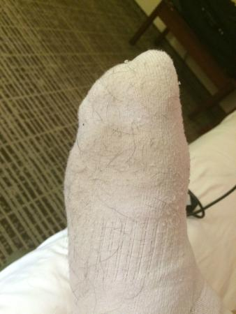 Baymont Inn & Suites Thomasville: Hair and dirt from carpet