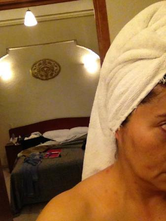 Hotel El Salvador : aparecen las ronchas que me marcaron mi cuerpo