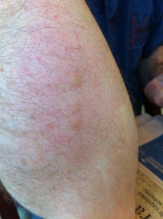 NH Sevilla Viapol: Bed bug bites