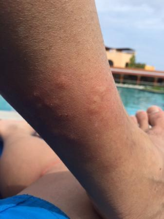 Hotel Cozumel and Resort: Bed Bug bites