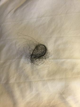 Radisson Hotel Harrisburg Hairball Found In Supposedly Clean Bed
