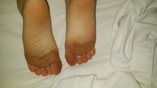 Sun Time Inn: my little girls feet after she walked on the carpet. Yes, she is current  on her immunizations!!