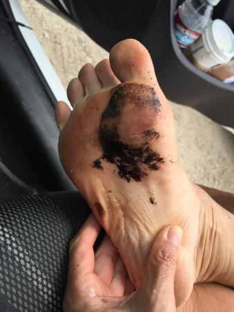 Malibu, Californien: Ölverschmiert am Strand von El Matador