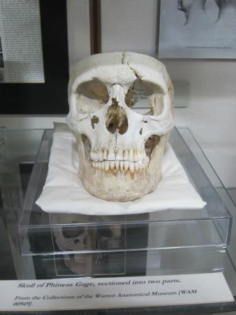 Warren Anatomical Museum
