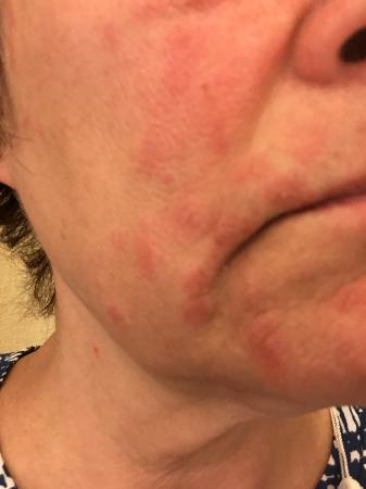 Canyon Ranch SpaClub - Las Vegas: My face got burned at spa boutique demo of NuFace