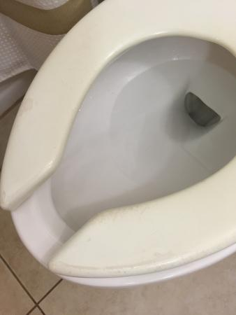 Columbus Marriott: Old dirty toilet seats