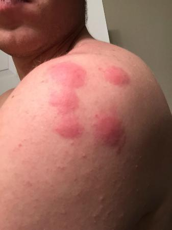 Bed Bug Bites Picture Of Sheraton Greensboro At Four