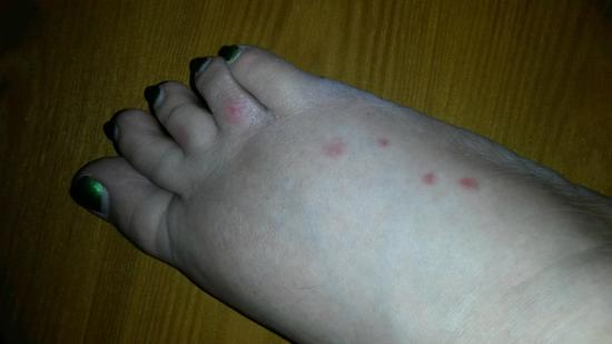 Holiday Motel: Bedbug bites on other foot.