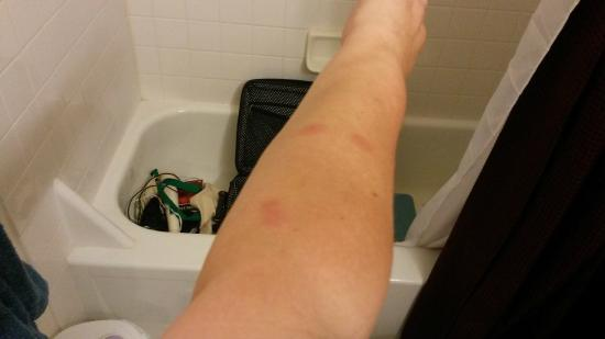 Holiday Motel: Bedbug bites on the other arm--with my suitcase in the tub at home to watch for more bugs