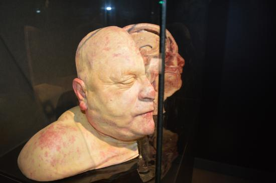 La Boule De Fort Boyard Picture Of Body Worlds