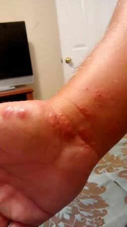 Key West Inn: Bed bug bites from staying here...