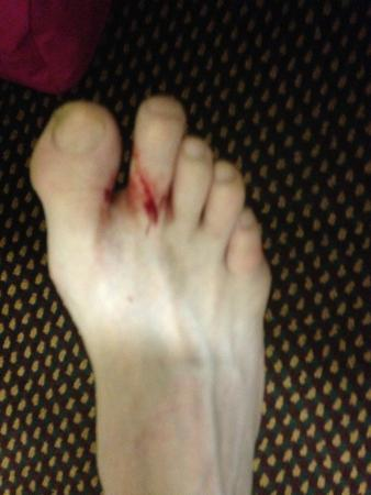 Days Inn des Moines-West Clive: bloody toe