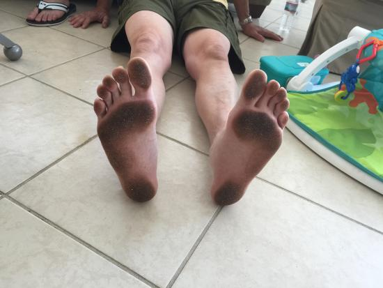 My Feet After Walking Across The Floor
