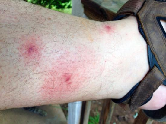 Knights Inn Nashville: Bug bites on my leg