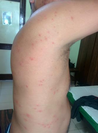 Senhor Angelo Resort: Thanks to lots of bedbugs