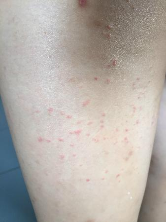 Kim Samnang Guesthouse: Friend 2, bitten by dust mites (left thigh)