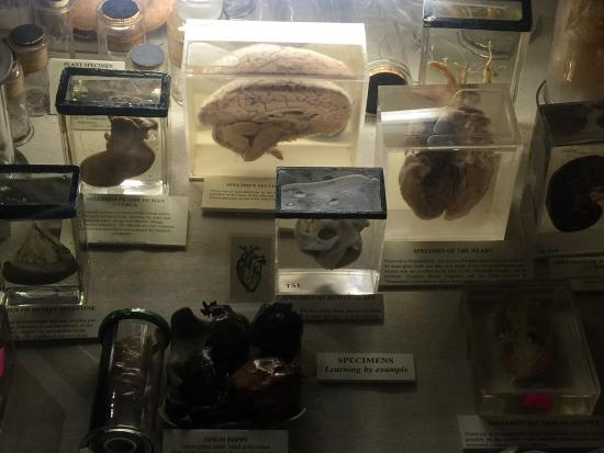 Old Operating Theatre: photo4.jpg