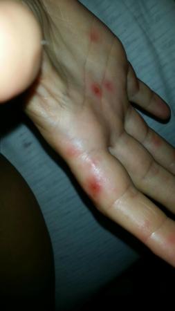 Club Hotel Felicia Village: Hand-Fuss-Mund Krankheit im Felicia Village