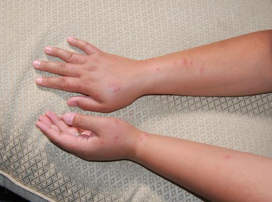 Bed Bugs Bites from Best Western Hazlet Inn,