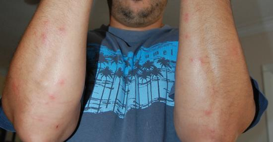 Hazlet, NJ: my husband's bite marks