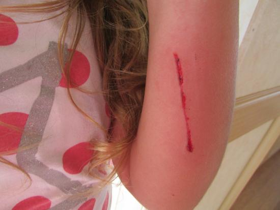 Sunnyvale Holiday Park : daughters injery