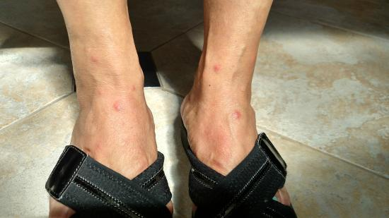 Residence Inn San Diego Scripps Poway Parkway: Flea bites, ankles front