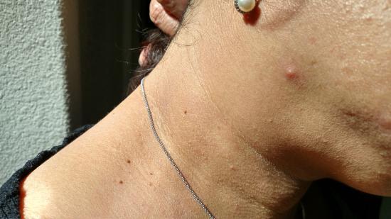 Residence Inn San Diego Rancho Bernardo/Scripps Poway : Fleabite on face