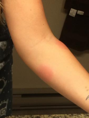 Howard Johnson Hotel Vancouver Downtown: bed bugs
