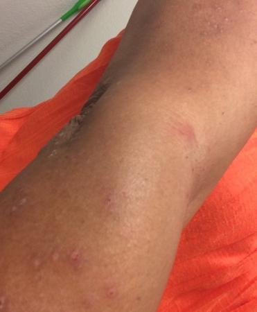 ANS Inn & Suites, Winchester: bed bug bites