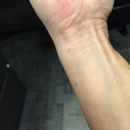 Hotel Belle Arti: More bedbug bites on wrist and forearm from Belle Arti Hotel