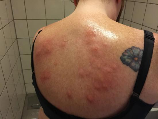 My back with c 20 bites picture of delta hotel amsterdam for Como eliminar chinches de cama