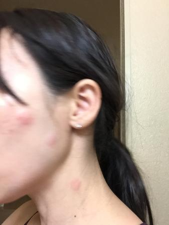 Extended Stay America - Las Vegas - Valley View: Bites on my face.
