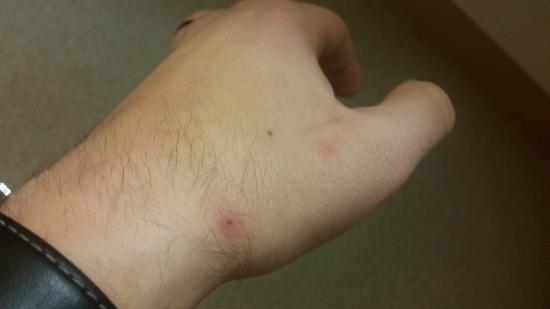 Extended Stay America - Springfield - South: Bites from bed bugs.