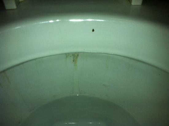 Comfort Inn & Suites: Stained Toilet