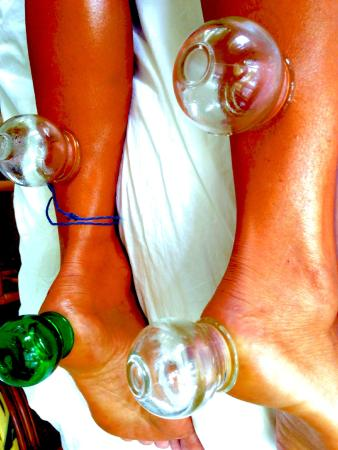 Kilauea, HI: Cupping Therapy for Achilles Tendon and Heel Injury.