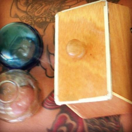Kilauea, Hawái: Chinese Cupping Therapy with Moxibustion Heat Box for Lower Back Support.