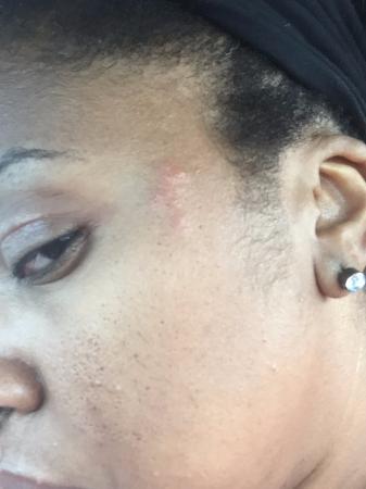 bed bug bites on face