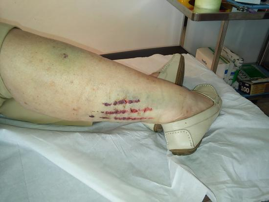 La Canada Shopping Centre : The leg after accident