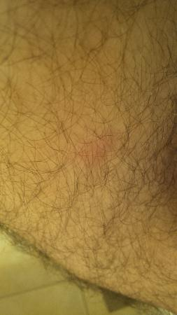 Travelodge Montreal Centre: have a bug bite on my leg