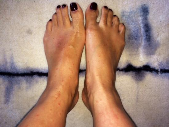Island Inn: one week later, still lot of marks in the skin