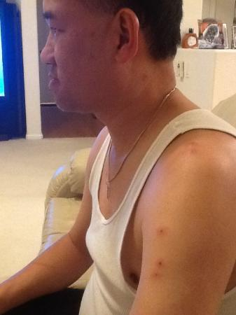 Budget Inn: Bed bugs on my arm and shoulder.