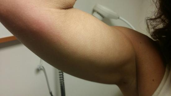 Modesto, CA: Bedbugs!!!